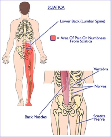 nerve pain causes nerve pain thighs aching legs causes and treatment i health blogger