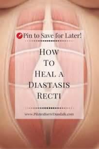 heal  diastasis recti health diastasis recti