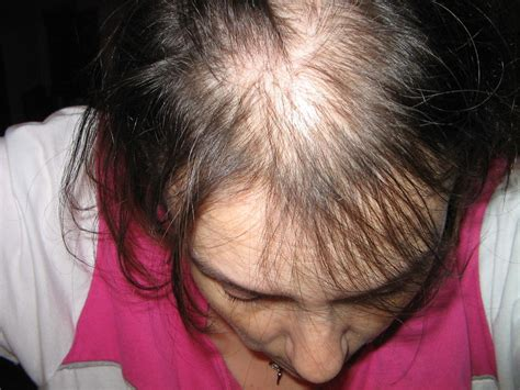 hate hair after surgery 2015 gastric bypass surgery hair loss after weight loss