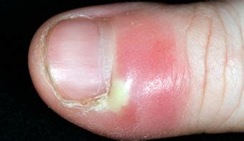 infected fingernail bed nail abnormalities nhs choices