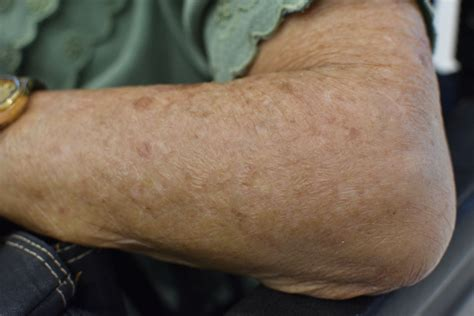 crepey skin on arms natural and professional treatments for crepey skin