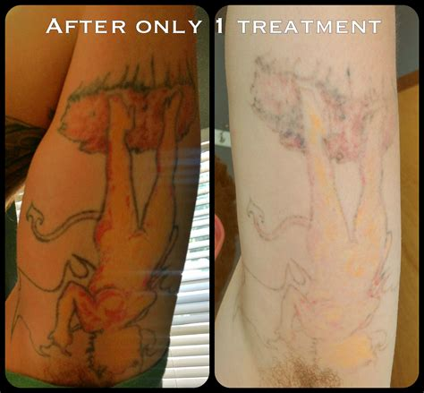 different types of tattoo removal laser removal before and after 1 treatment