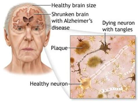 alzheimer s 10 facts about alzheimer s disease fact file