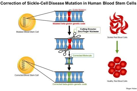 Sickle Cell Trait Research Papers by Ucla Stem Cell Researchers Develop Promising Method To