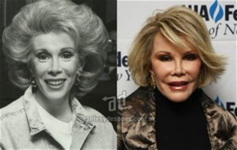 Detox Pre Surgery by Joan Rivers Plastic Surgery Before And After Photos Detox