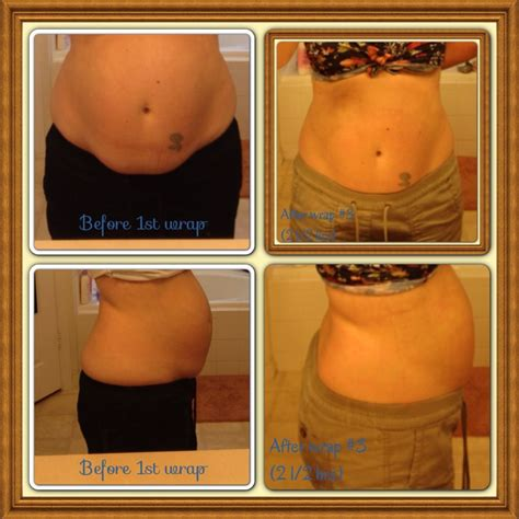 before 1st wrap and after 3rd on my stomach i had 2 c 14 1 2 months apart the last c