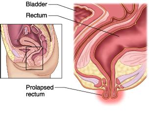 diagram of prolapsed uterus incontinence treatment hereford brendan mcilroy frcs eng