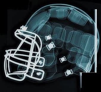 football helmet design and concussions football concussion statistics real analytics
