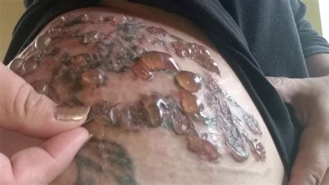 infected tattoo real or fake cystbursting com popping awful tattoo removal blisters youtube
