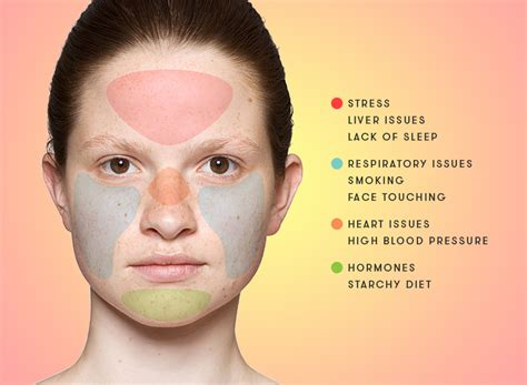 Can Detoxing Your Make Your Skin Breakout by Anti Acn 233 Jovees Usa