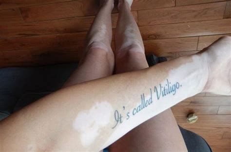 vitiligo tattoo cost woman shares powerful image of vitiligo tattoo to raise