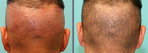 hair transplant melbourne newinhairtransplant hair transplant melbourne newinhairtransplant