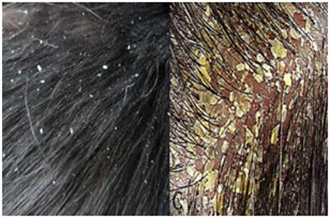 cuero cabelludo muy seco antiaging spa la caspa