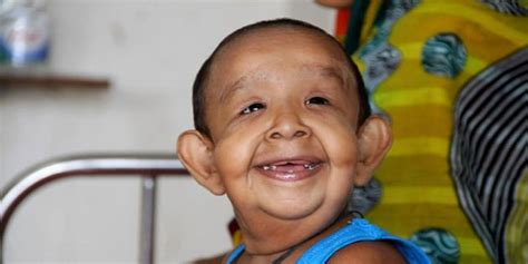 bangladeshi 4 year old boy bayezid shikdar has genetic