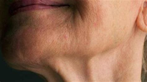women with turkey neck pictures how to get rid of a turkey neck without surgery in four