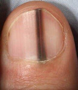 dark line on fingernail are black lines in fingernails melanoma safe symptoms