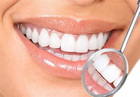 teeth whitening recipe for white and