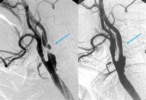 stenosi carotide interna angioplastica delle carotidi e tronchi sovra aortici