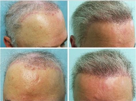 transplant hair from chest to head chest hair transplant to head hair transplant hair loss