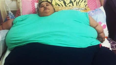 fattest person in the world world s fattest woman got weight loss surgery fat tigers