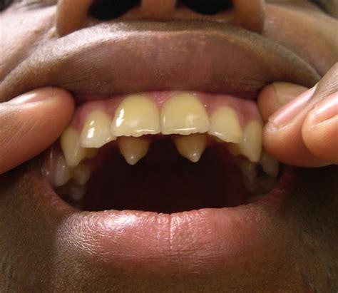with teeth supernumerary teeth