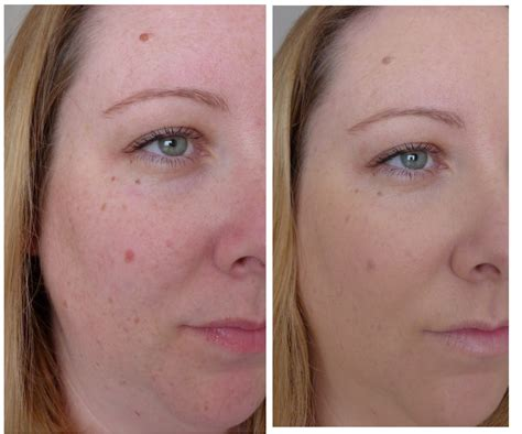 Bio Acne By Azalika Glow best treatment acne scars back what product is for