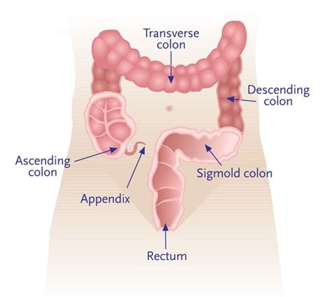 Colon Cancer Without Blood In Stool by American Cancer Society Routine Cancer Screenings