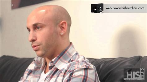 male pattern baldness youtube his hair clinic gael s male pattern baldness hair loss