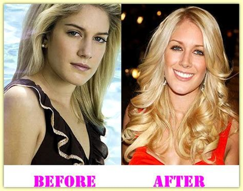 Heidi Montag Plastic Surgery by Heidi Montag Plastic Surgery Before And After