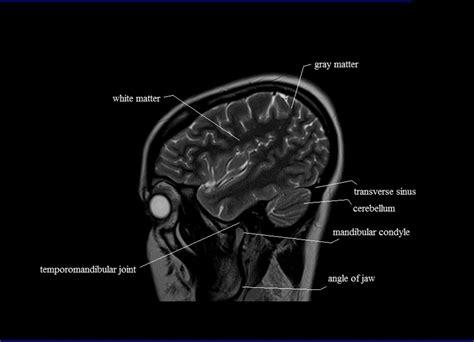 cross sectional anatomy mri brain sagittal anatomy