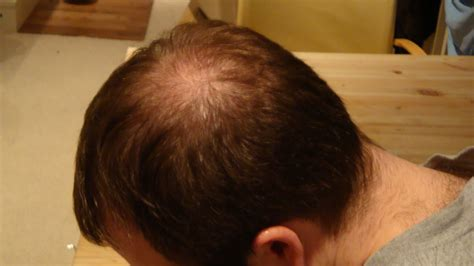 bald spots on head pictures to pin on pinterest pinsdaddy