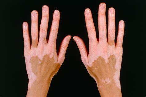 vitiligo images vitiligo causes symptoms prevention cure and treatment