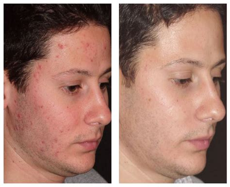 diode laser for acne scars acne scar 55th laser clinic