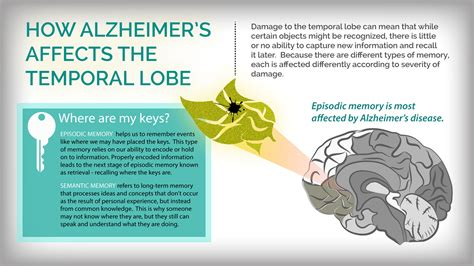 Moment Memory Brain how alzheimer s disease changes the brain my moment