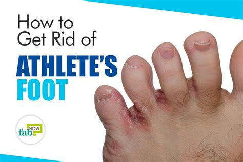 athletes foot shoe treatment how to get rid of athlete s foot fast kill the fungal