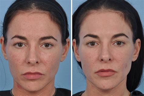 Ill Plastic Surgery Hollyscoop by Subliminal Difference A New Approach To
