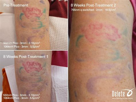 az tattoo removal the valley s best removal with the exclusive