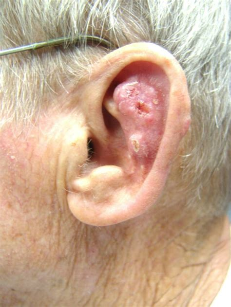 Free Find Excision Of Basal Cell Carcinoma Of The Auricle With Ftsg Otolaryngology Houston