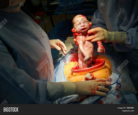 c section at 35 weeks c section birth image photo bigstock