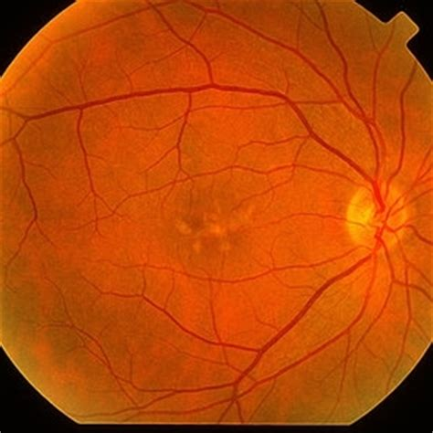 macular pattern dystrophy the retina reference discover images retina image bank
