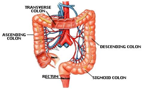 colon sections colorectal cancer cancer of the colon or rectum