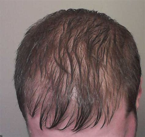 thinning hair in women on top of head the gallery for gt thinning hair top of head