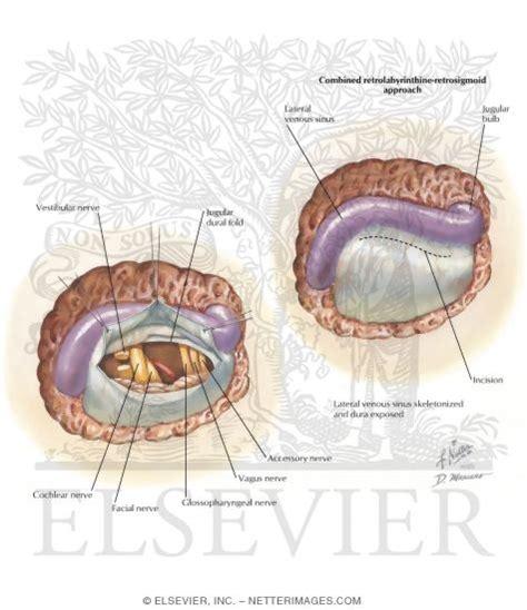 vestibular nerve section vestibular nerve section