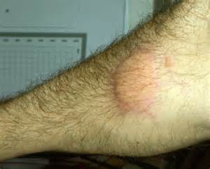 what do bed bug bites look like bed bug bite pictures