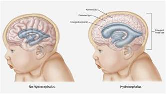 best homeopathic treatment of hydrocephalus baby enlarged