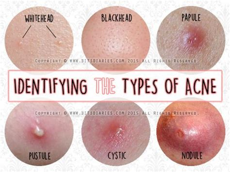 Home Remedies For Small Pores On Face - 25 best ideas about different types of acne on pinterest types of acne how to treat acne and