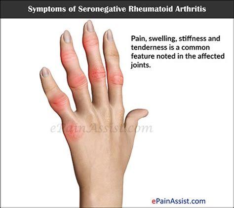 Clinical Picture Of Rheumatoid Arthritis arthritis symptoms woodrow healthcare consulting