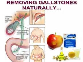 His research generally people who get cancer sooner had gallstones
