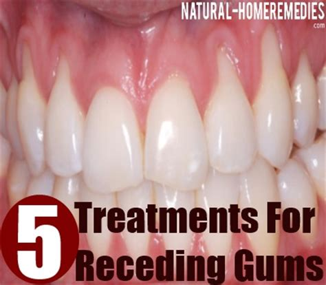 Gum Pockets Home Treatment by 5 Effective Receding Gums Treatments Simple And