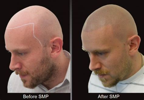 scalp micropigmentation for blonde hair new york s his hair clinic fights baldness with needle and